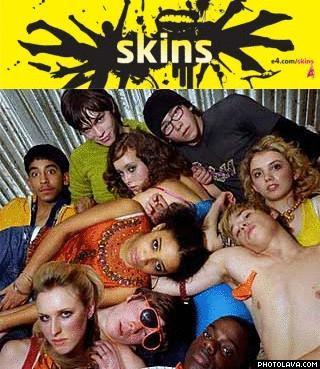 Série : Skins